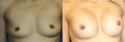 patient-11124-breast-augmentation-before-after