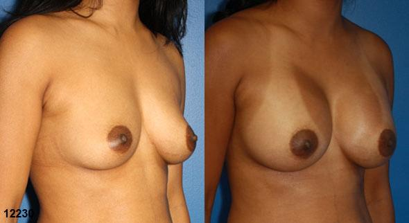 patient-11131-breast-augmentation-before-after-1