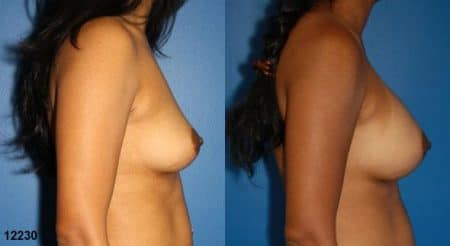 patient-11131-breast-augmentation-before-after-2