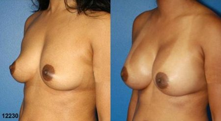 patient-11131-breast-augmentation-before-after-3