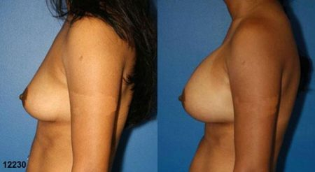 patient-11131-breast-augmentation-before-after-4