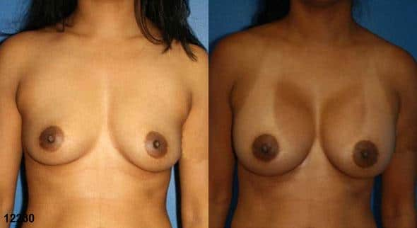 patient-11131-breast-augmentation-before-after