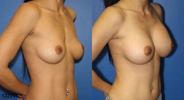 patient-11142-breast-augmentation-before-after-1