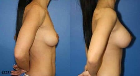 patient-11142-breast-augmentation-before-after-2