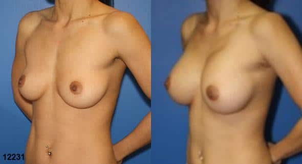patient-11142-breast-augmentation-before-after-3