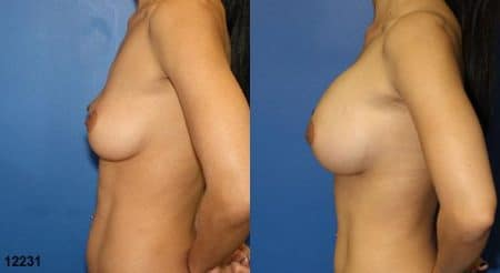 patient-11142-breast-augmentation-before-after-4