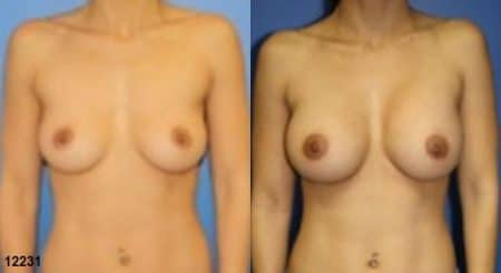 patient-11142-breast-augmentation-before-after