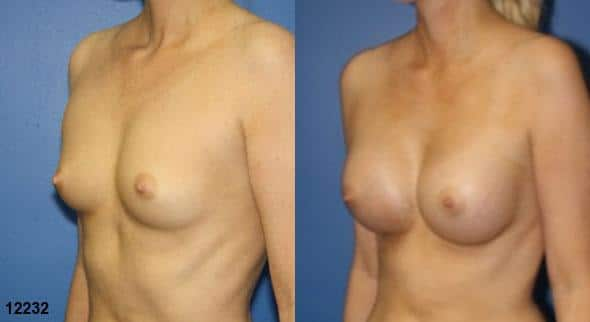 patient-11153-breast-augmentation-before-after-1