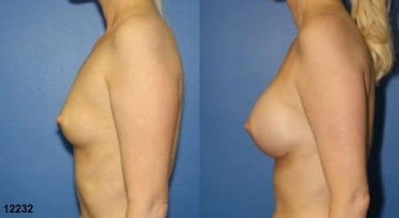 patient-11153-breast-augmentation-before-after-2