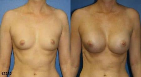 patient-11153-breast-augmentation-before-after