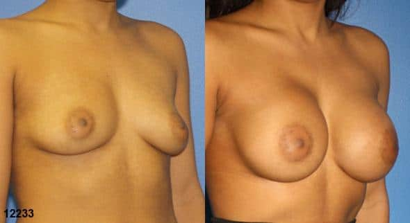 patient-11160-breast-augmentation-before-after-1