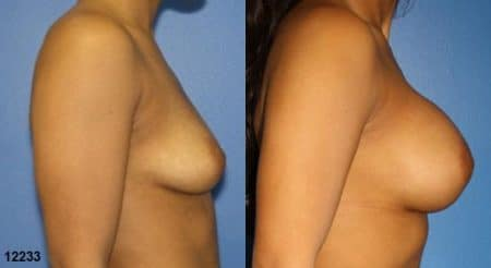 patient-11160-breast-augmentation-before-after-2