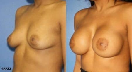 patient-11160-breast-augmentation-before-after-3