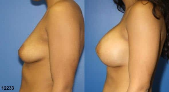 patient-11160-breast-augmentation-before-after-4
