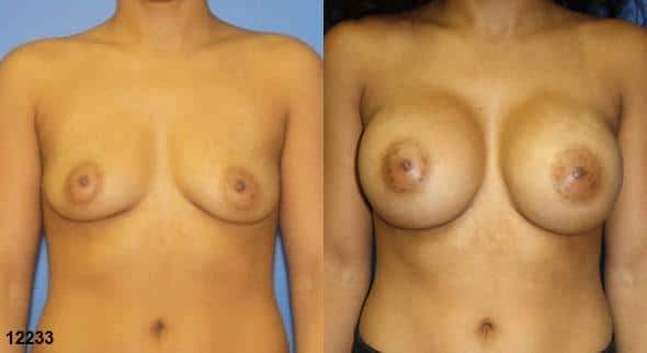 patient-11160-breast-augmentation-before-after