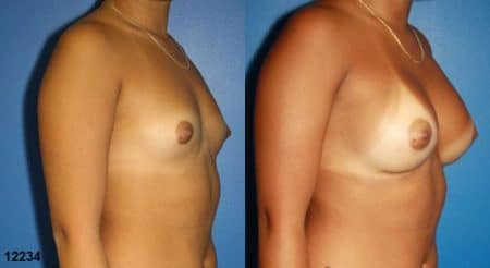 patient-11171-breast-augmentation-before-after-1