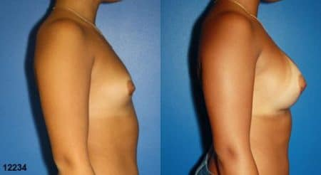 patient-11171-breast-augmentation-before-after-2