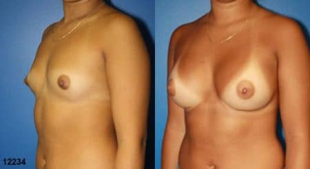 patient-11171-breast-augmentation-before-after-3