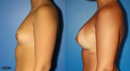 patient-11171-breast-augmentation-before-after-4