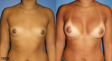 patient-11171-breast-augmentation-before-after