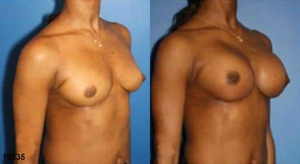 patient-11182-breast-augmentation-before-after-1