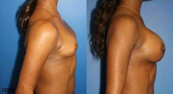 patient-11182-breast-augmentation-before-after-2