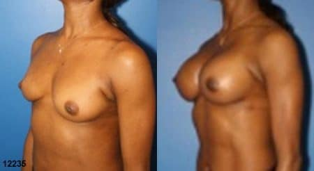 patient-11182-breast-augmentation-before-after-3