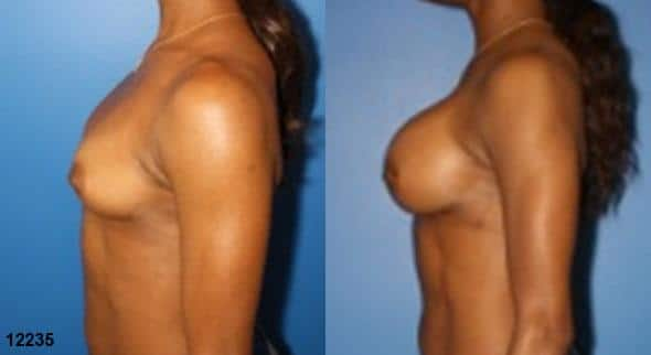 patient-11182-breast-augmentation-before-after-4