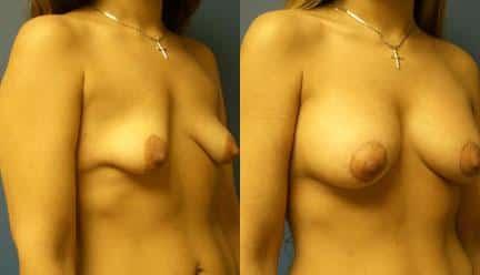 patient-11193-breast-irregularities-before-after-1