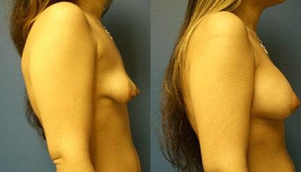 patient-11193-breast-irregularities-before-after-2