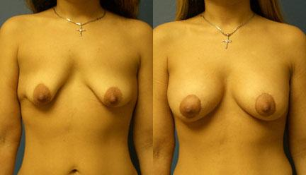 patient-11193-breast-irregularities-before-after