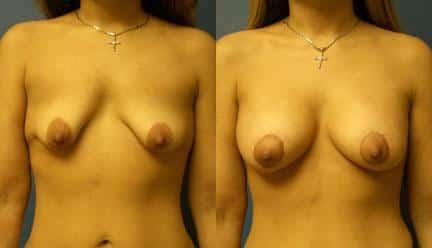 patient-11193-breast-irregularities-before-after