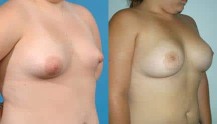 patient-11200-breast-irregularities-before-after-1