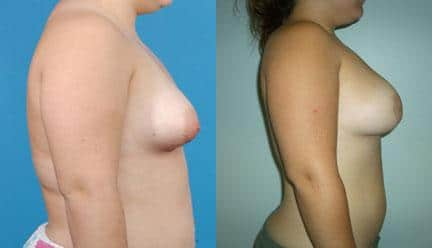 patient-11200-breast-irregularities-before-after-2