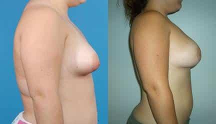patient-11200-breast-irregularities-before-after-2