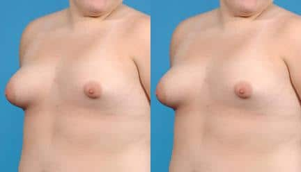 patient-11200-breast-irregularities-before-after-3
