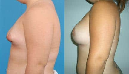 patient-11200-breast-irregularities-before-after-4