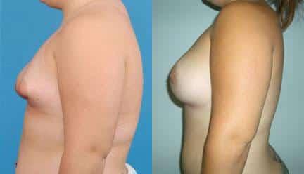 patient-11200-breast-irregularities-before-after-4