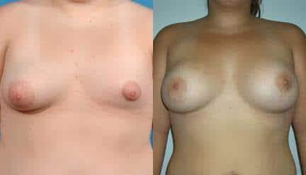 patient-11200-breast-irregularities-before-after