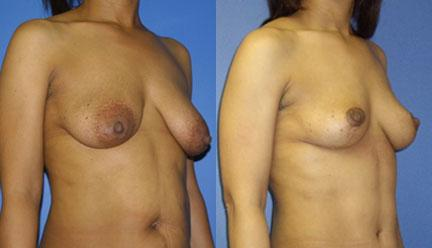 patient-11211-breast-lift-before-after-1