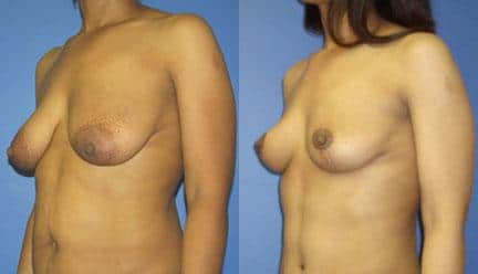 patient-11211-breast-lift-before-after-3