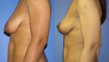 patient-11211-breast-lift-before-after-4