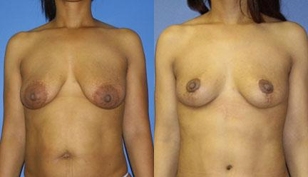 patient-11211-breast-lift-before-after