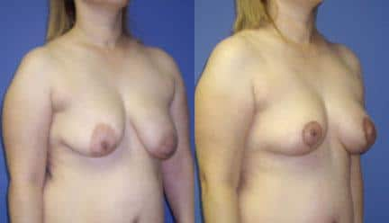 patient-11222-breast-lift-before-after-1