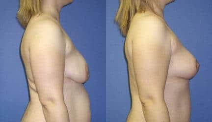 patient-11222-breast-lift-before-after-2