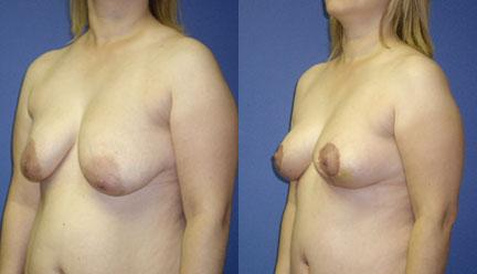 patient-11222-breast-lift-before-after-3