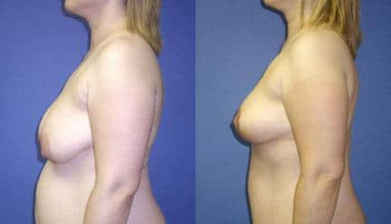 patient-11222-breast-lift-before-after-4