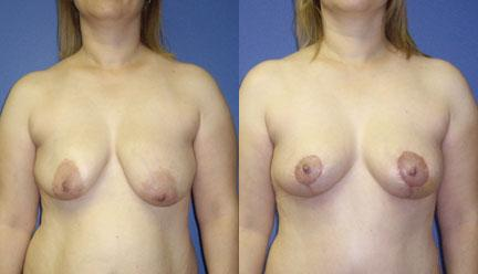 patient-11222-breast-lift-before-after
