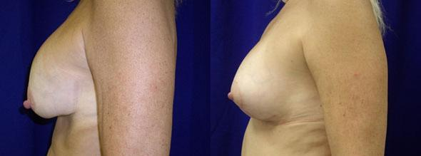 patient-11233-breast-lift-before-after