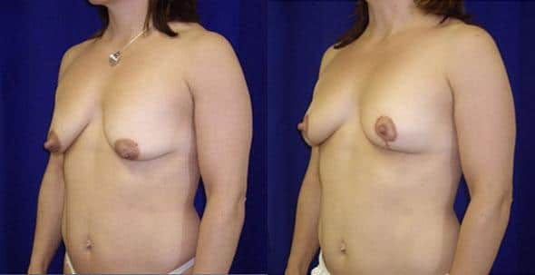 patient-11236-breast-lift-before-after-1